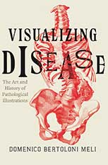 Visualizing Disease: The Art and History of Pathological Illustrations